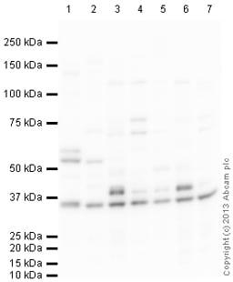 Western blot - Anti-RACK1 antibody (ab111621)