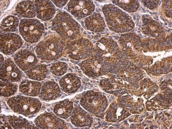 Immunohistochemistry (Formalin/PFA-fixed paraffin-embedded sections) - Anti-Dab1 antibody (ab111684)