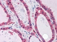 Immunohistochemistry (Formalin/PFA-fixed paraffin-embedded sections) - Anti-KCNN2/SK2 antibody (ab111939)