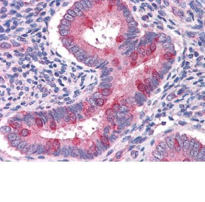 Immunohistochemistry (Formalin/PFA-fixed paraffin-embedded sections) - Anti-Hamartin antibody (ab111981)