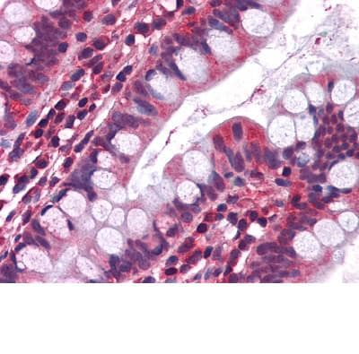Immunohistochemistry (Formalin/PFA-fixed paraffin-embedded sections) - Anti-5HT3A receptor antibody (ab111983)