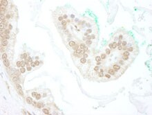 Immunohistochemistry (Formalin/PFA-fixed paraffin-embedded sections) - Anti-SLX4 antibody (ab112044)