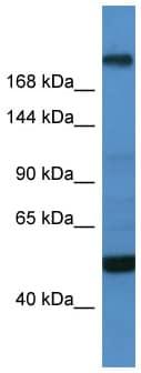 Western blot - Anti-SPBP antibody (ab112089)