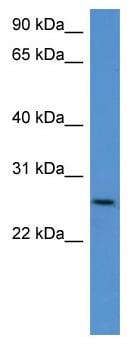 Western blot - Anti-CHODL antibody (ab112103)