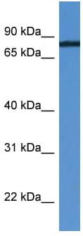 Western blot - Anti-HHIPL1 antibody (ab112180)