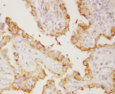 Immunohistochemistry (Formalin/PFA-fixed paraffin-embedded sections) - Anti-Integrin alpha V antibody (ab112487)