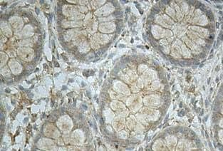Immunohistochemistry (Formalin/PFA-fixed paraffin-embedded sections) - Anti-ICAM4 antibody (ab112554)