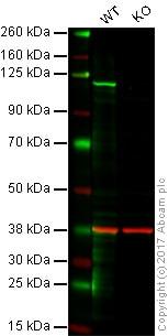 Western blot - Anti-Rb antibody [EP44(2)] (ab113074)