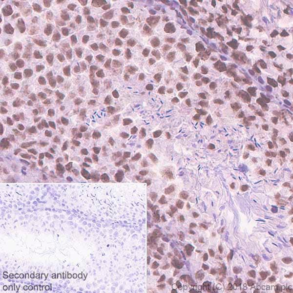 Immunohistochemistry (Formalin/PFA-fixed paraffin-embedded sections) - Anti-PHD1/prolyl hydroxylase antibody [EPR2746] (ab113077)
