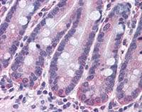 Immunohistochemistry (Formalin/PFA-fixed paraffin-embedded sections) - Anti-STAP2 antibody (ab113083)