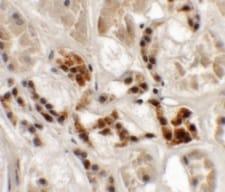 Immunohistochemistry (Formalin/PFA-fixed paraffin-embedded sections) - Anti-AP3S1 antibody (ab113099)