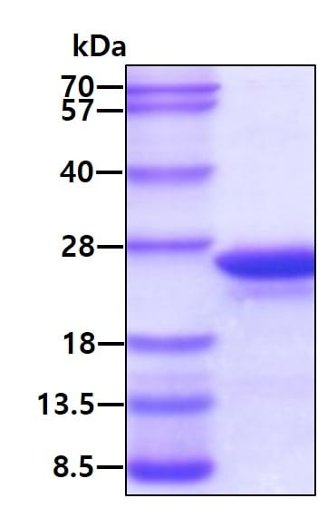 SDS-PAGE - Recombinant Human MYL12A protein (ab113139)