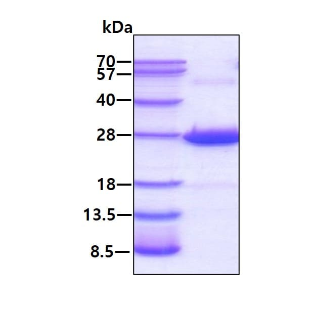 SDS-PAGE - Recombinant Human CRYBA4 protein (ab113143)