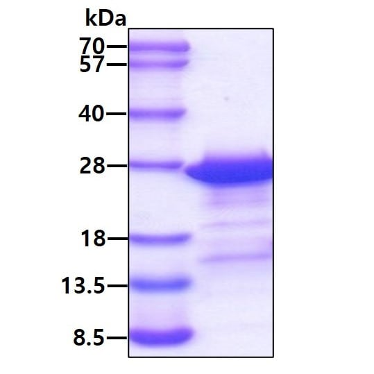 SDS-PAGE - Recombinant Human PCNP protein (ab113147)