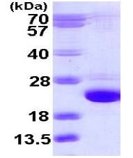 SDS-PAGE - Recombinant Human Rab24 protein (ab113161)