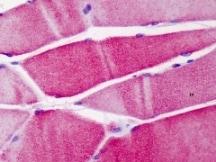 Immunohistochemistry (Formalin/PFA-fixed paraffin-embedded sections) - Anti-ACTN3 antibody (ab113234)
