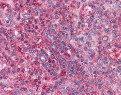 Immunohistochemistry (Formalin/PFA-fixed paraffin-embedded sections) - Anti-cIAP2 antibody (ab113237)