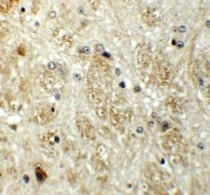 Immunohistochemistry (Formalin/PFA-fixed paraffin-embedded sections) - Anti-Protor-1 antibody (ab113269)