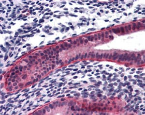 Immunohistochemistry (Formalin/PFA-fixed paraffin-embedded sections) - Anti-PTCHD2 antibody (ab113414)