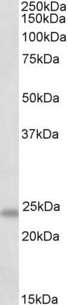 Western blot - Anti-GM2A antibody (ab113416)