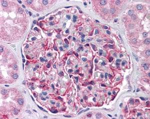 Immunohistochemistry (Formalin/PFA-fixed paraffin-embedded sections) - Anti-FRMPD4 antibody (ab113420)