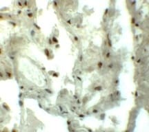 Immunohistochemistry (Formalin/PFA-fixed paraffin-embedded sections) - Anti-GRINL1A antibody (ab113427)