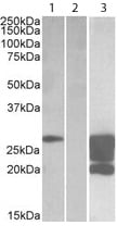 Western blot - Anti-GM2-AP antibody (ab113440)