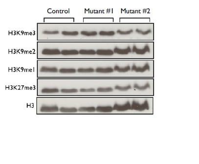 Functional Studies -  Histone Extraction Kit
