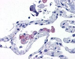Immunohistochemistry (Formalin/PFA-fixed paraffin-embedded sections) - Anti-TLR7 antibody (ab113524)