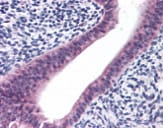 Immunohistochemistry (Formalin/PFA-fixed paraffin-embedded sections) - Anti-PTCHD2 antibody (ab113529)