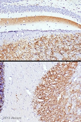 Immunohistochemistry (Formalin/PFA-fixed paraffin-embedded sections) - Anti-SYT2 antibody (ab113545)