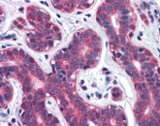 Immunohistochemistry (Formalin/PFA-fixed paraffin-embedded sections) - Anti-SNX12 antibody (ab113619)