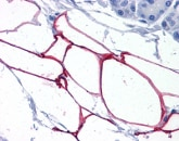 Immunohistochemistry (Formalin/PFA-fixed paraffin-embedded sections) - Anti-KIAA1881 antibody (ab113624)