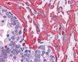 Immunohistochemistry (Formalin/PFA-fixed paraffin-embedded sections) - Anti-VPS37C antibody (ab113630)