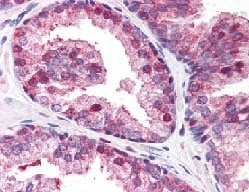 Immunohistochemistry (Formalin/PFA-fixed paraffin-embedded sections) - Anti-GOLPH3/MIDAS antibody (ab113649)
