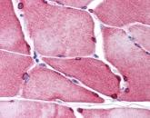 Immunohistochemistry (Formalin/PFA-fixed paraffin-embedded sections) - Anti-TMEM38A antibody (ab113676)