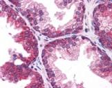 Immunohistochemistry (Formalin/PFA-fixed paraffin-embedded sections) - Anti-TMEM38B antibody (ab113681)