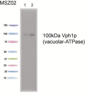 Western blot - Anti-VPH1 antibody [10D7A7B2] (ab113683)