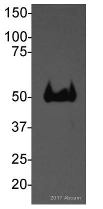 Western blot - Anti-PGK1 antibody [22C5D8] (ab113687)