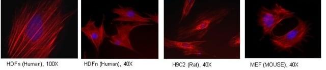 Immunocytochemistry/ Immunofluorescence - Anti-Tropomyosin 3 antibody [3D5AH3AB4] (ab113692)