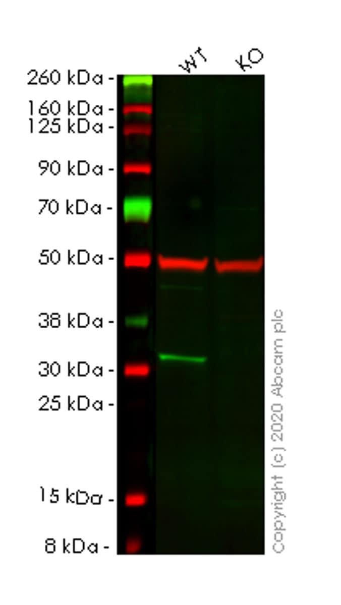 Western blot - Anti-Tropomyosin 3 antibody [3D5AH3AB4] (ab113692)