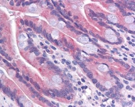 Immunohistochemistry (Formalin/PFA-fixed paraffin-embedded sections) - Anti-TMEM70 antibody (ab113705)