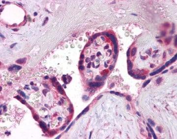 Immunohistochemistry (Formalin/PFA-fixed paraffin-embedded sections) - Anti-Synaptogyrin 3 antibody (ab113712)