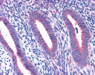 Immunohistochemistry (Formalin/PFA-fixed paraffin-embedded sections) - Anti-RPL22 antibody (ab113714)