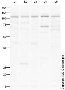 Western blot - Anti-ADAM33 antibody (ab113740)