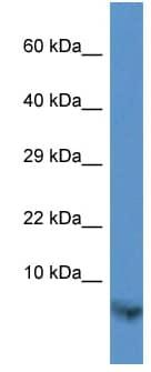 Western blot - Anti-TIMM13 antibody (ab113781)