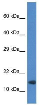 Western blot - Anti-RNF122 antibody (ab113810)