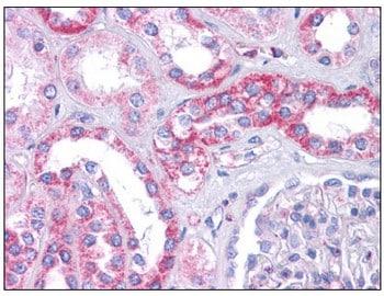 Immunohistochemistry (Formalin/PFA-fixed paraffin-embedded sections) - Anti-SIPA1L1 antibody (ab113815)