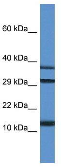 Western blot - Anti-UBL3 antibody (ab113820)