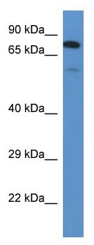 Western blot - Anti-GALNT3 antibody (ab113880)